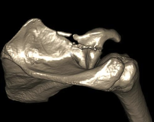 Coracoid Fracture CT 4
