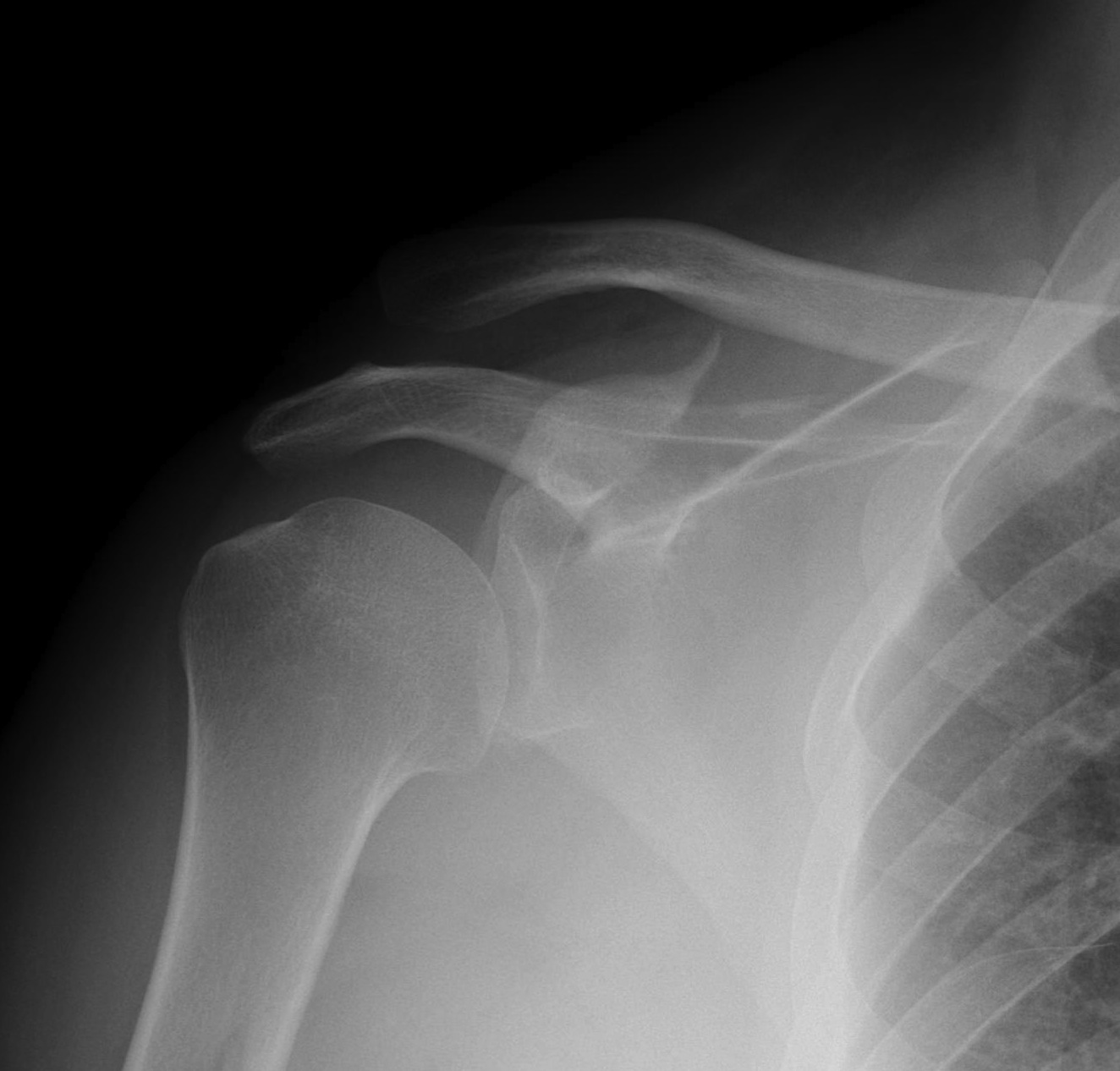 Coracoid Fracture 1