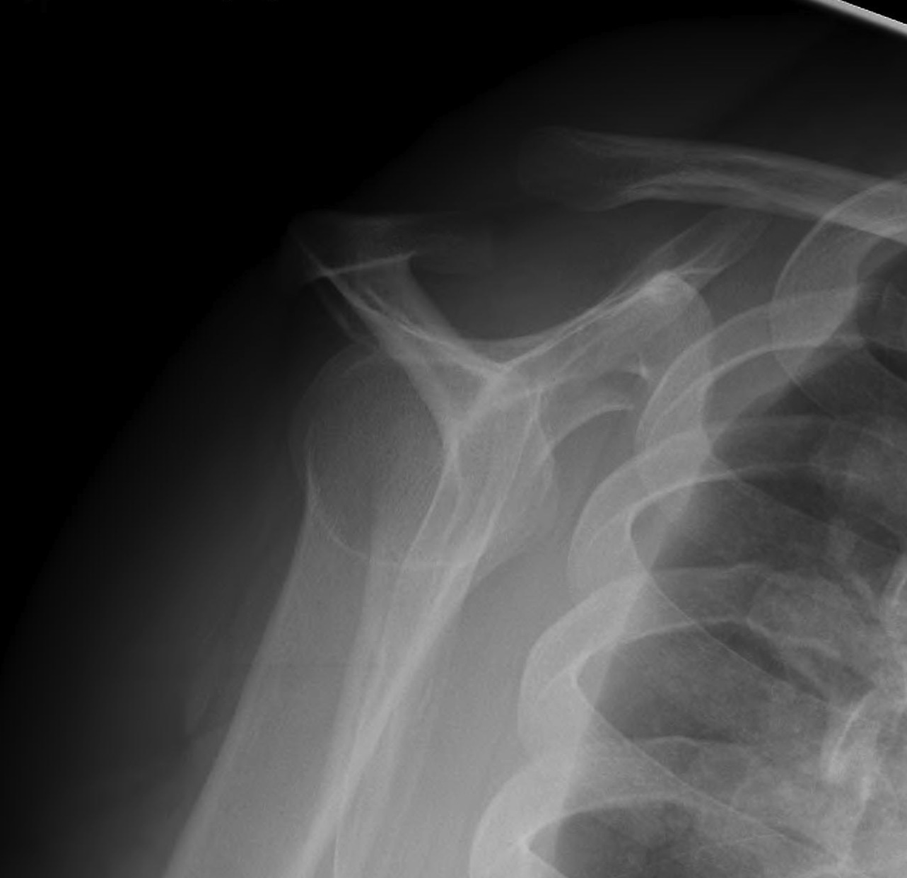 Coracoid Fracture 2