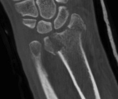 Distal Radius Radioulna Fragments