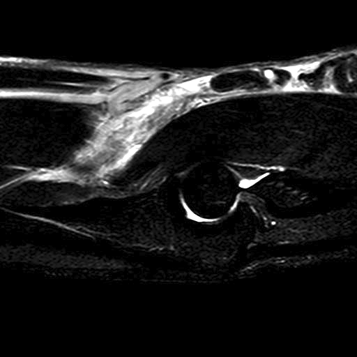 Distal Biceps Rupture MRI