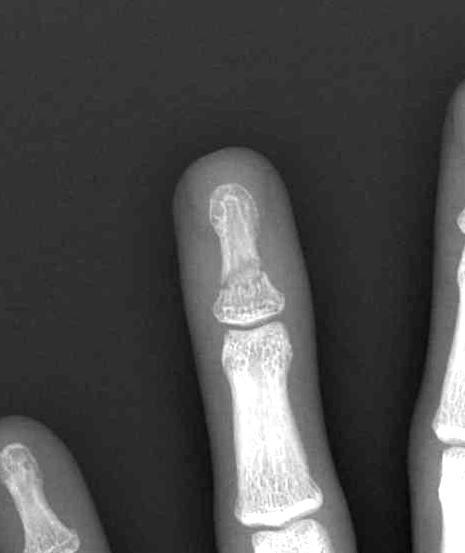 Finger Fractures The Bone School
