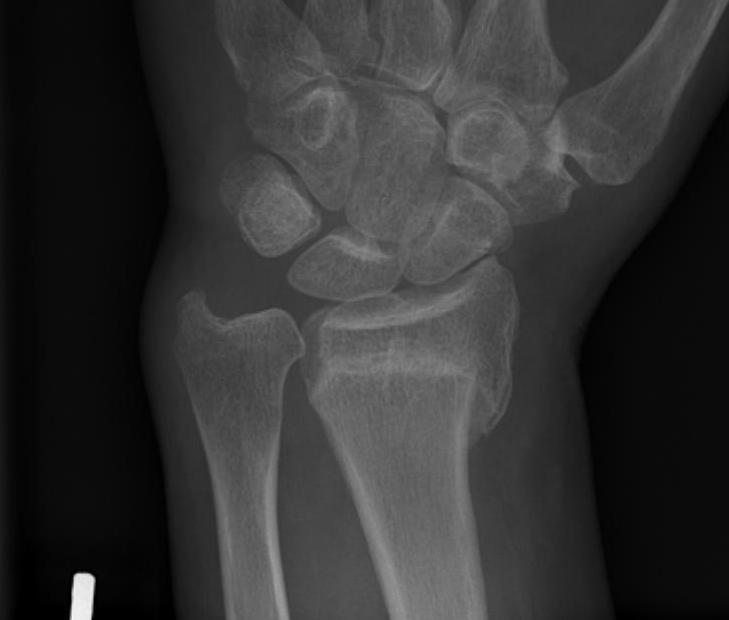 Distal Radial Malunion AP