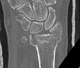 Distal Radius Fracture | The Bone School