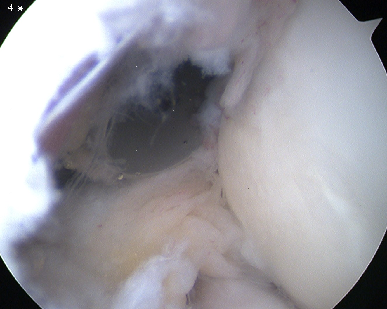 Elbow Scope Anterolateral Portal