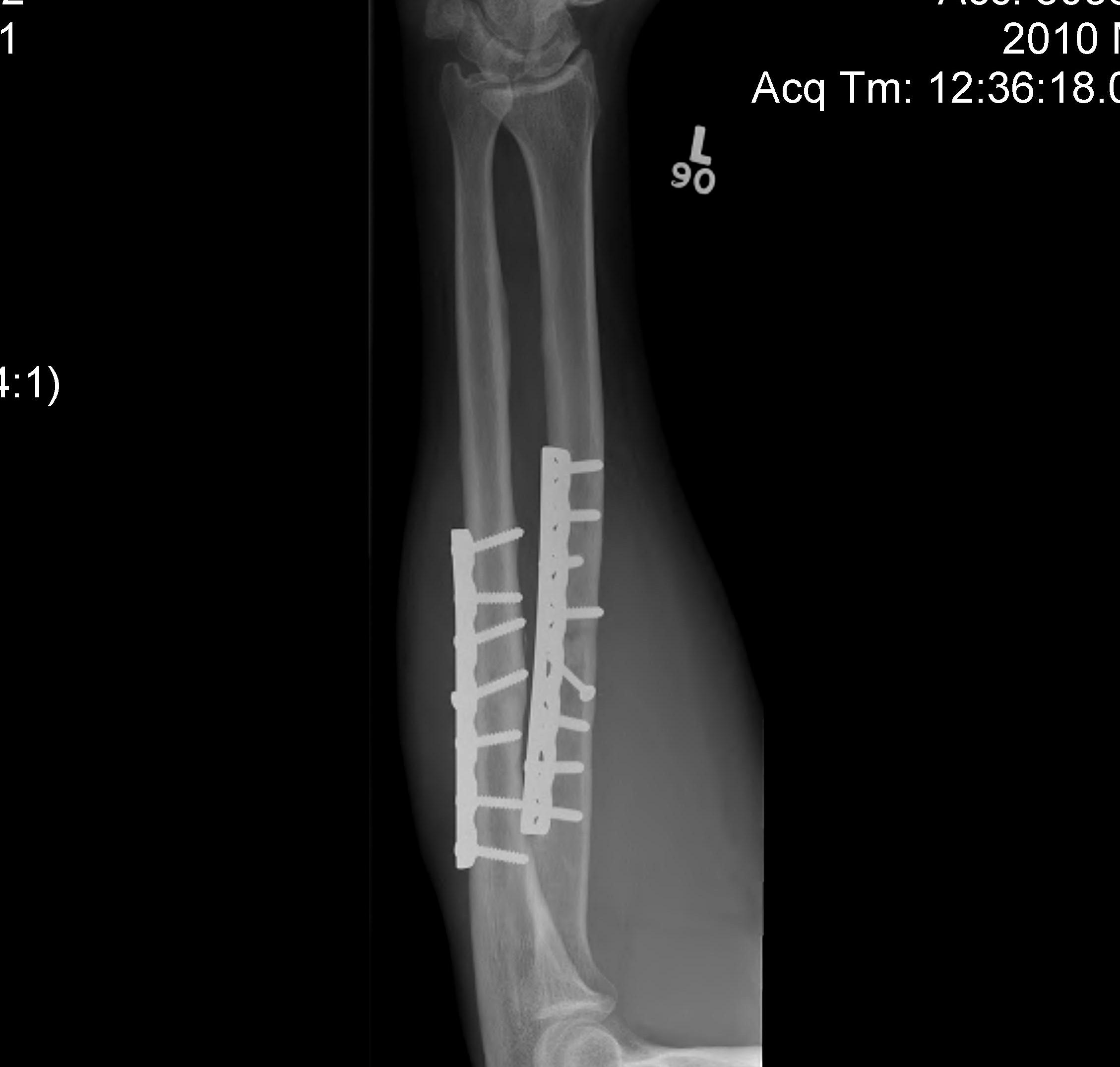 Forearm Fracture Plate