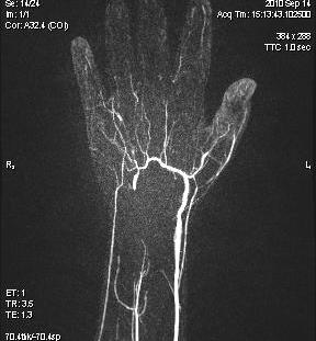 d Scleroderma Occluded Superficial Palmar Arch