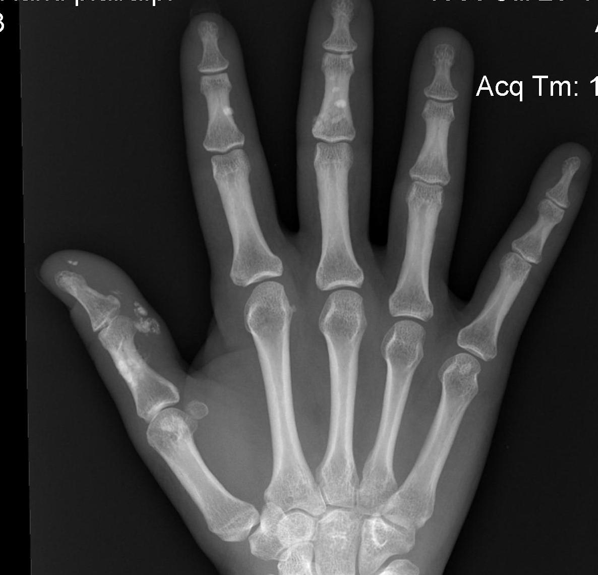 Hand Scleroderma