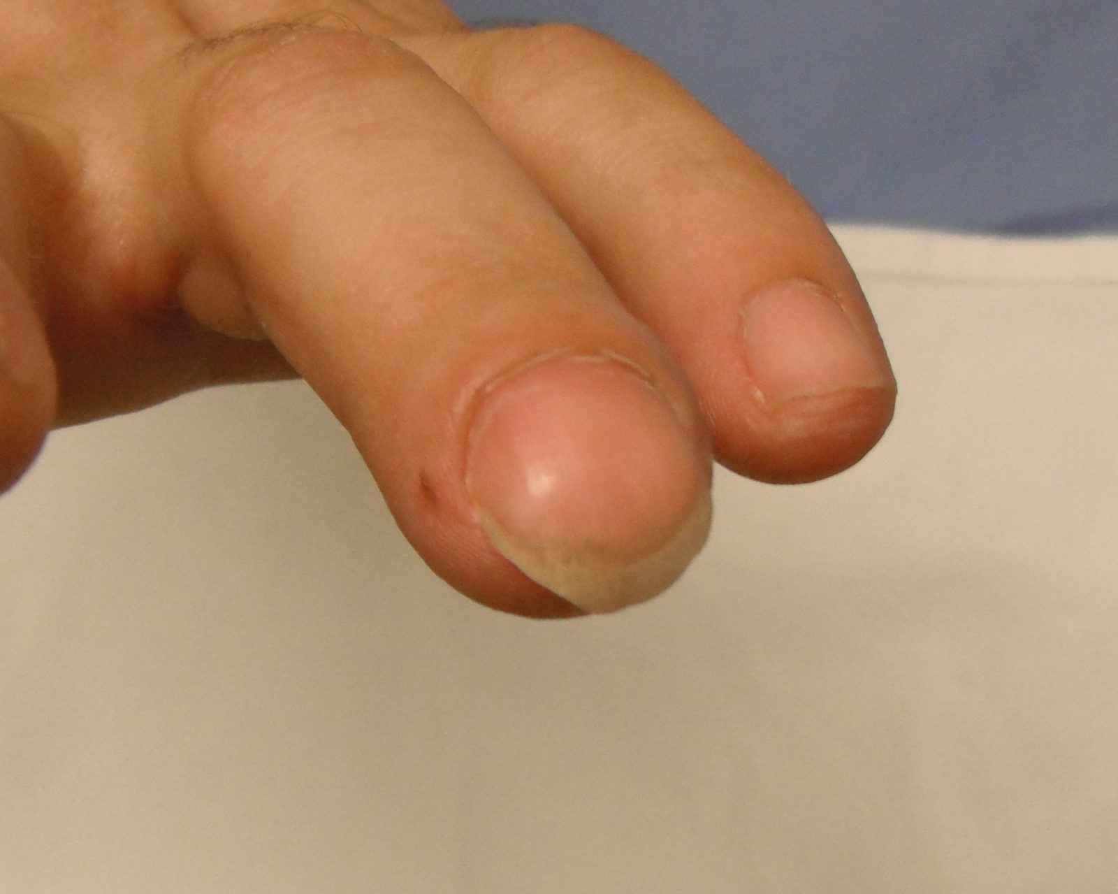 Nail Bed Lacerations | The Bone School