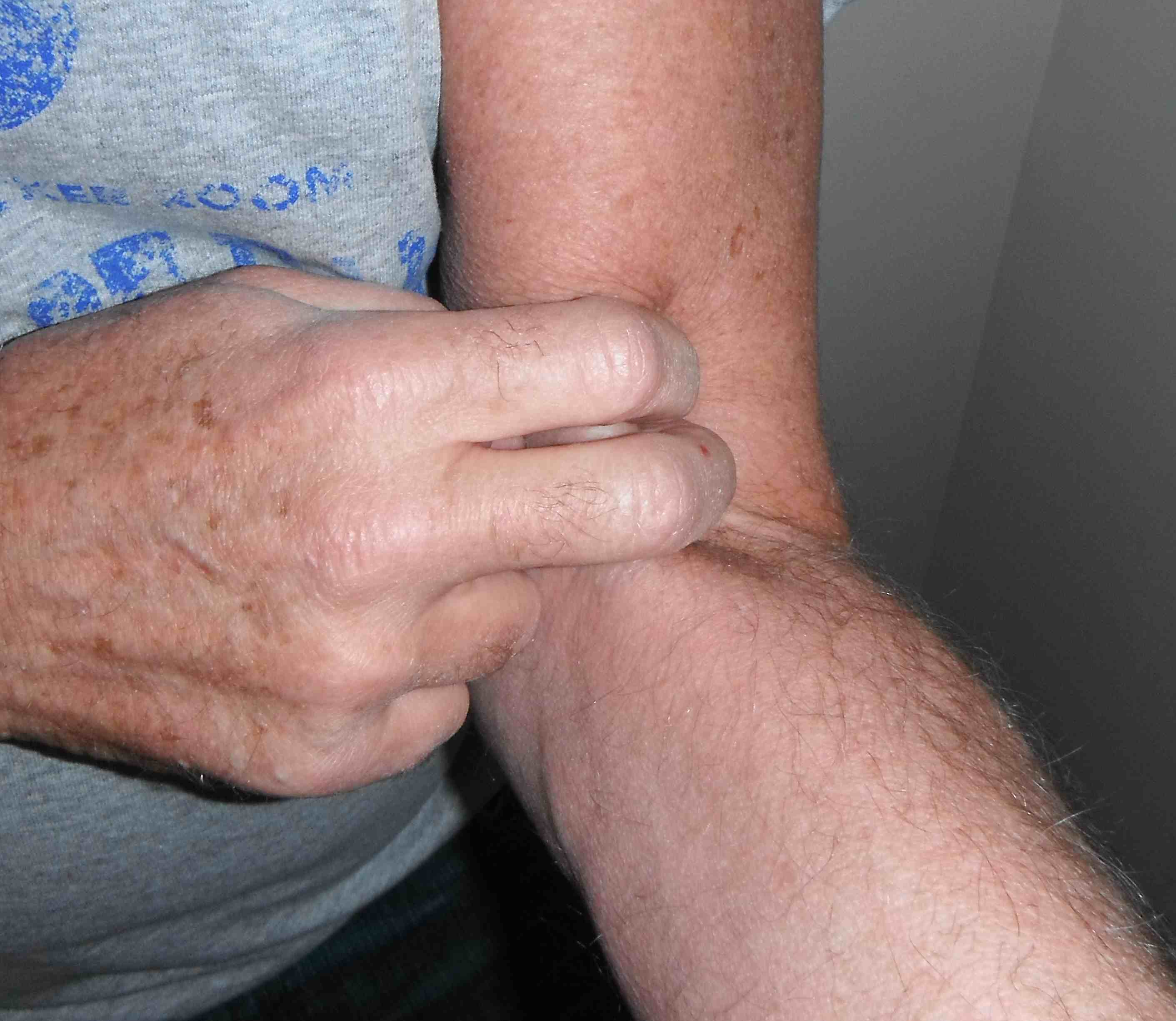 Biceps Tendon Hook Test