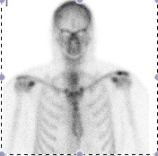 ACJ OA Hot Bone Scan