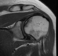 Humeral AVN Stage 2 MRI