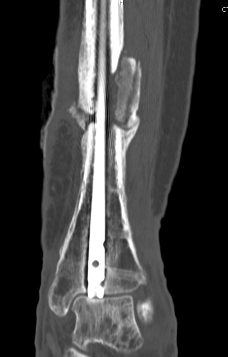 Infected Tibial Nonunion CT