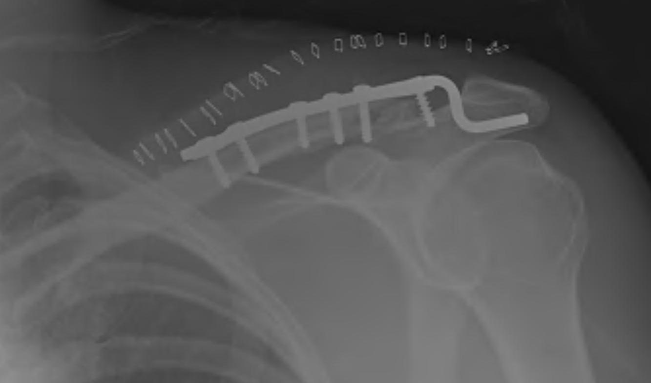 Lateral Clavicle Fracture Hook Plate Post op