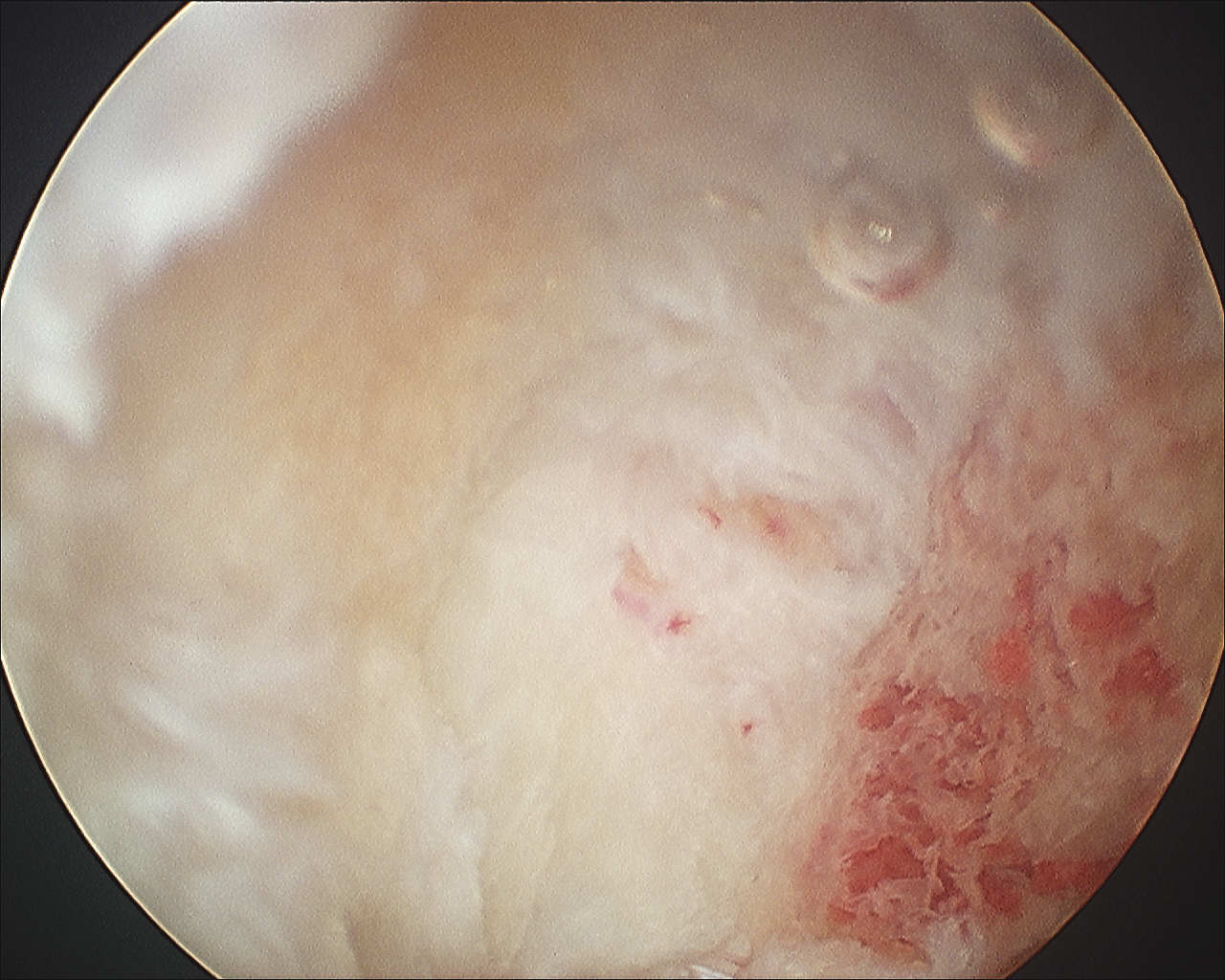 Superior AC Ligament post arthroscopic resection