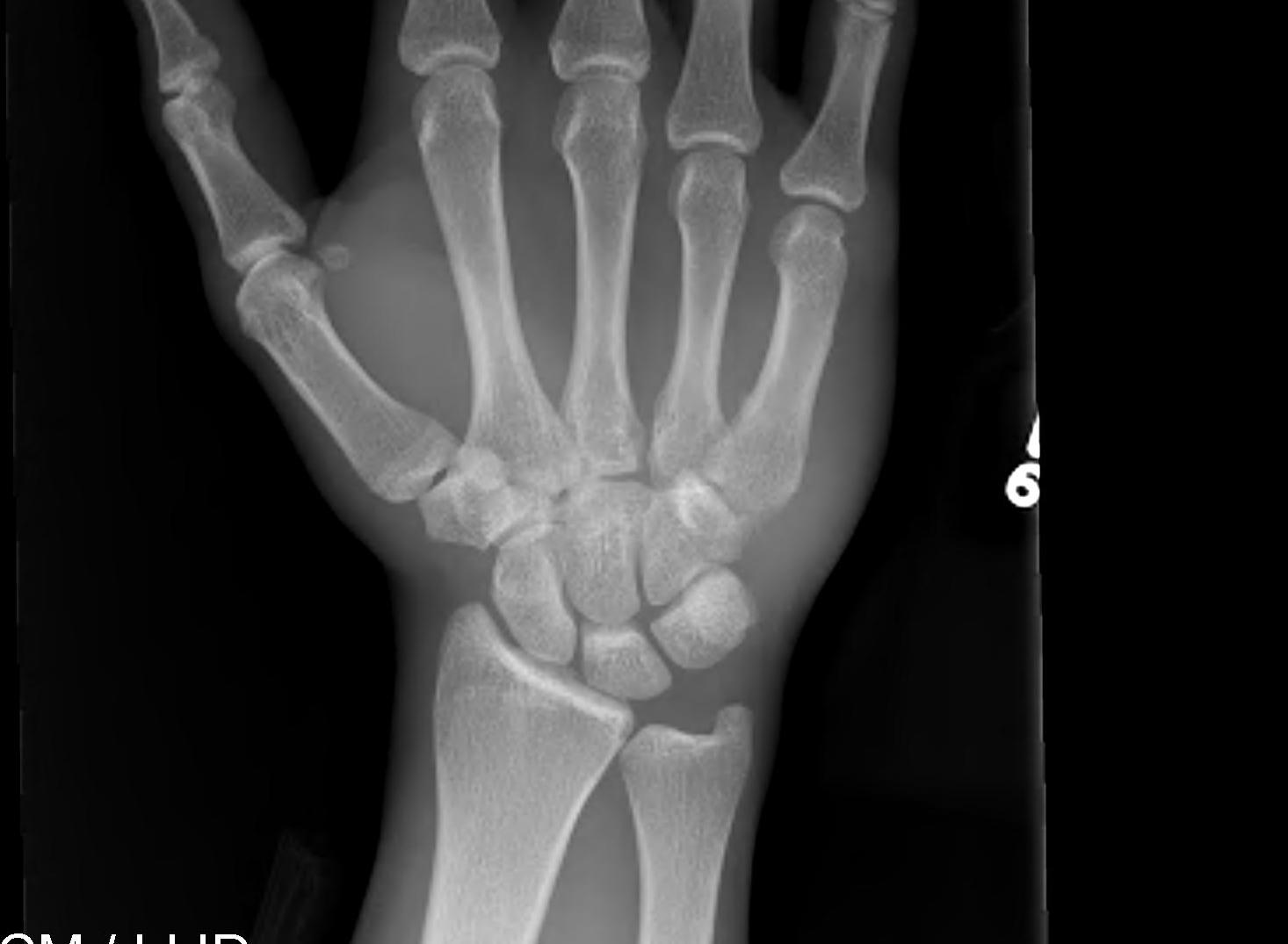 Metacarpal Base Fracture Dislocation AP