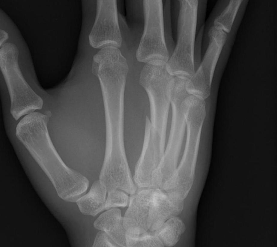 Metacarpal Fracture Minimally Displaced