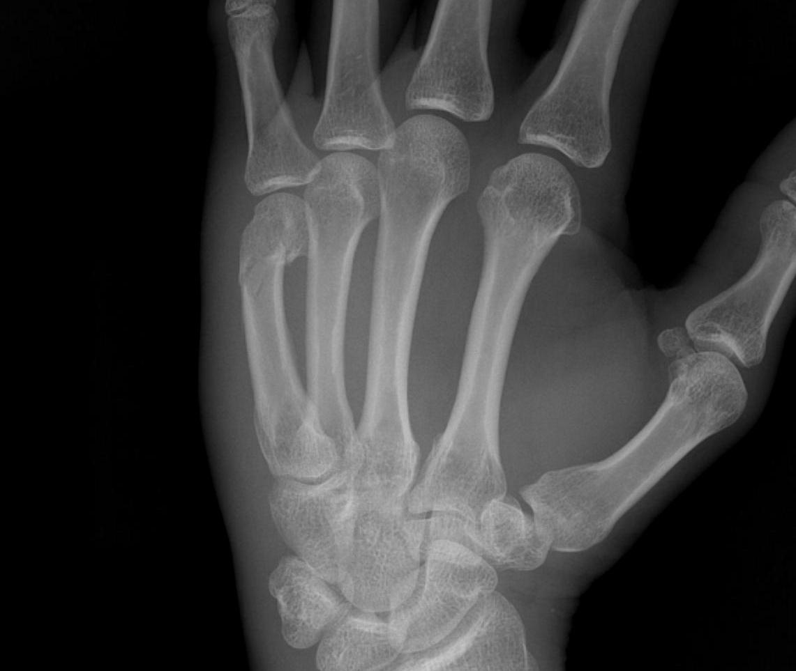 Neck of Fifth Metacarpal Fracture