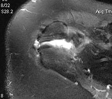Os Acromionale MRI 2