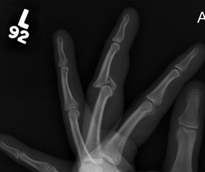 PIPJ Dislocation and Large Bony Fragment