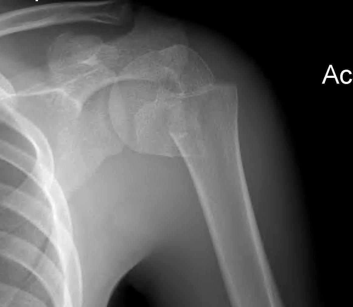 Proximal Humeral Fractures | The Bone School