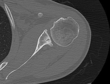 Posterior Instability Glenoid Retroversion