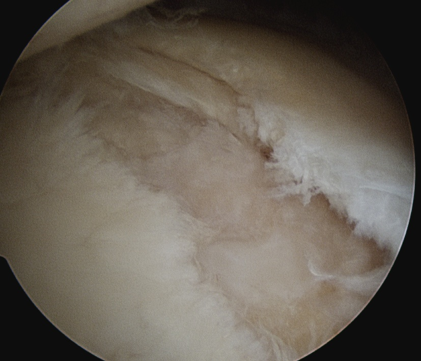 Posterior Labral Tear Cyst 1