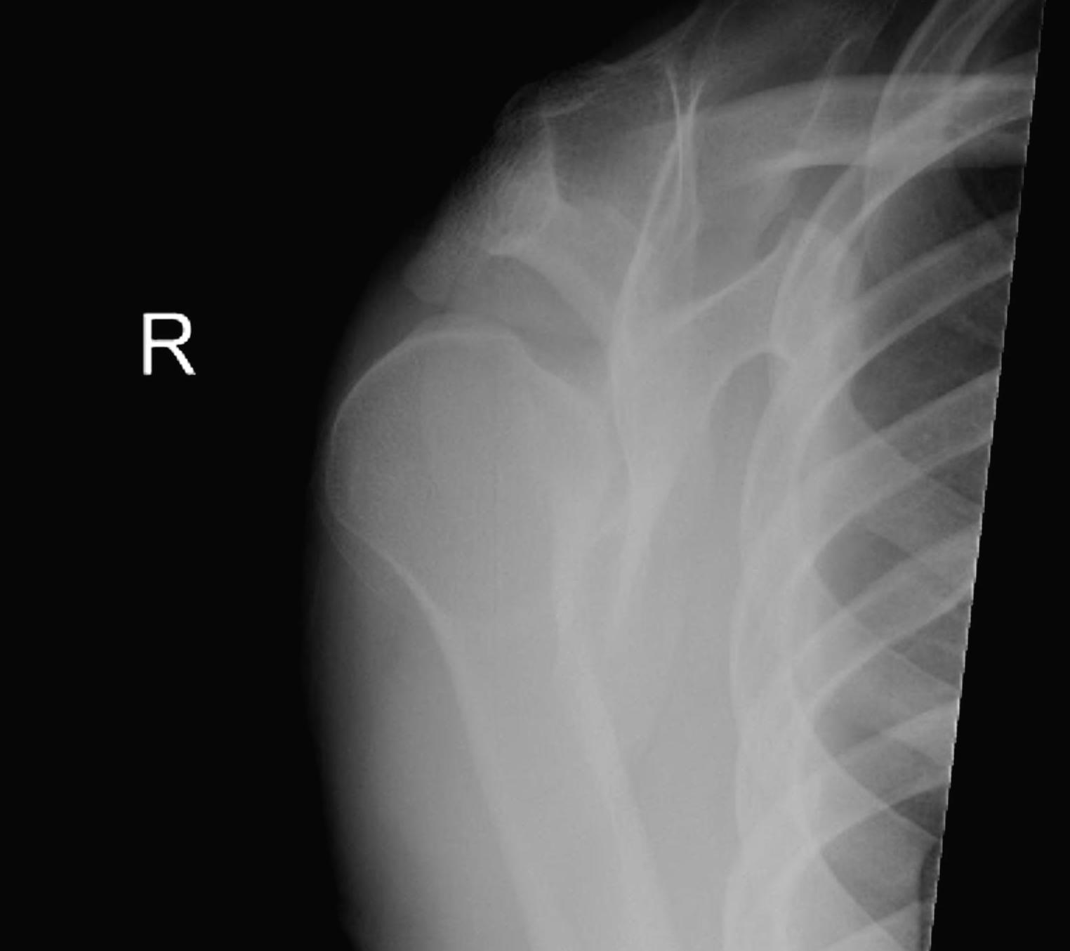 Posterior Shoulder Dislocation Scapula Lateral