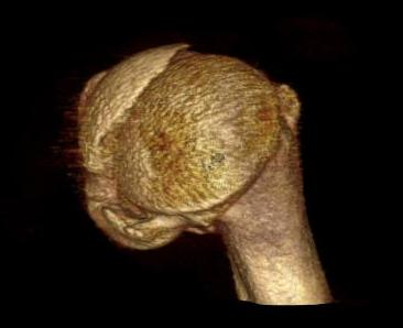 Proximal Humerus Head Split CT