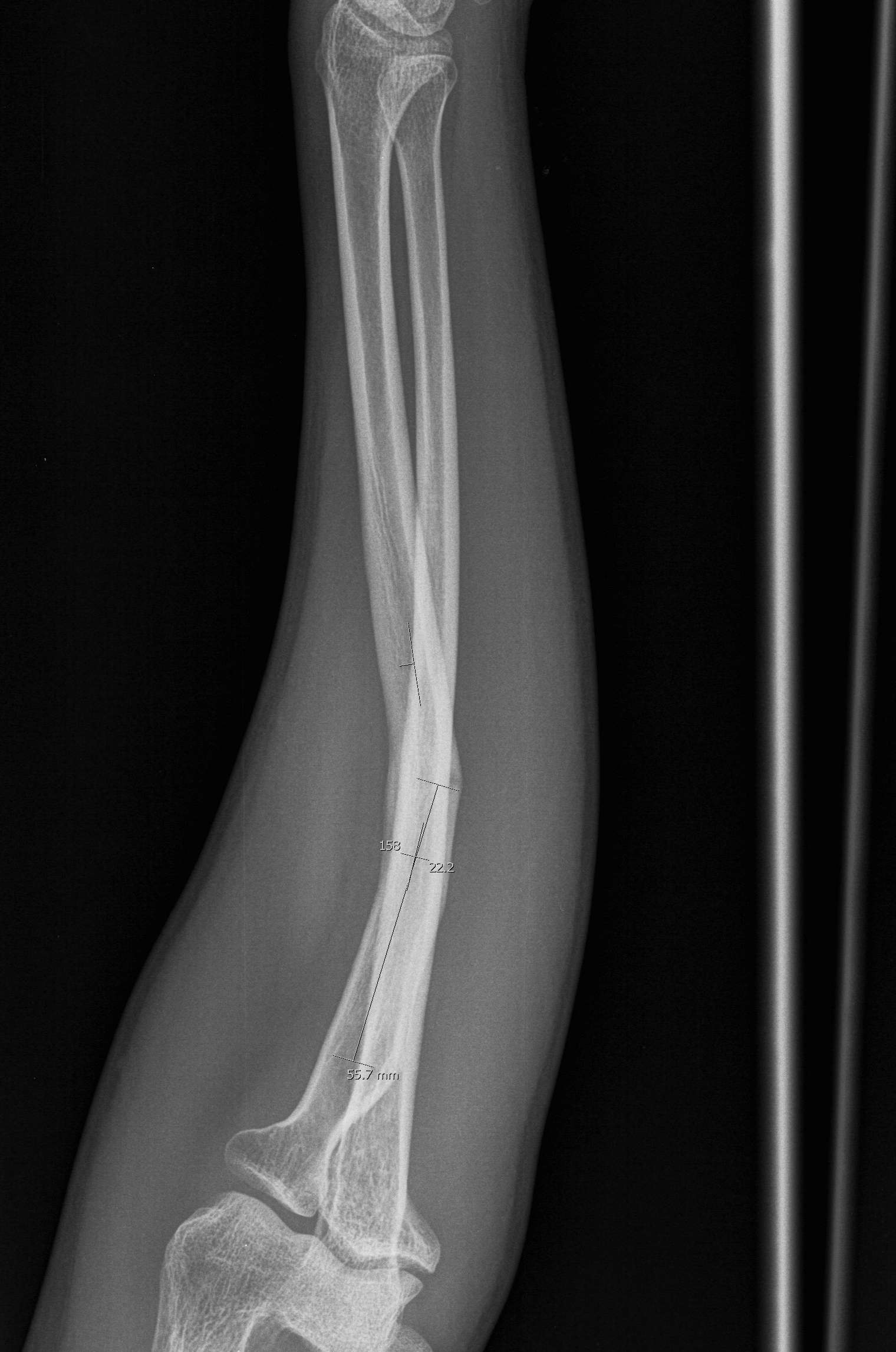Radial Fracture Malunion