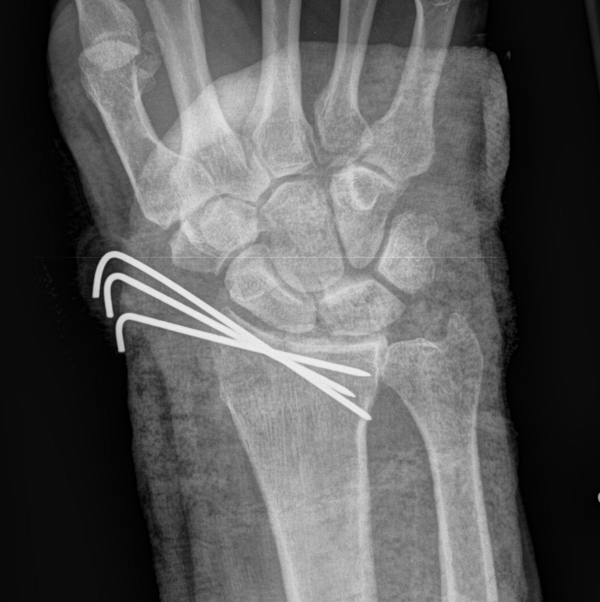 Radial Styloid K wires.jpg