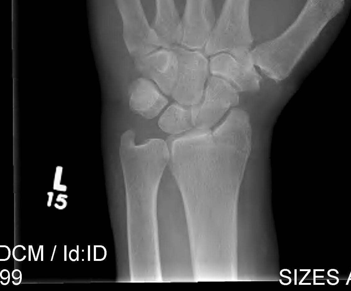 Radial styloid fracture