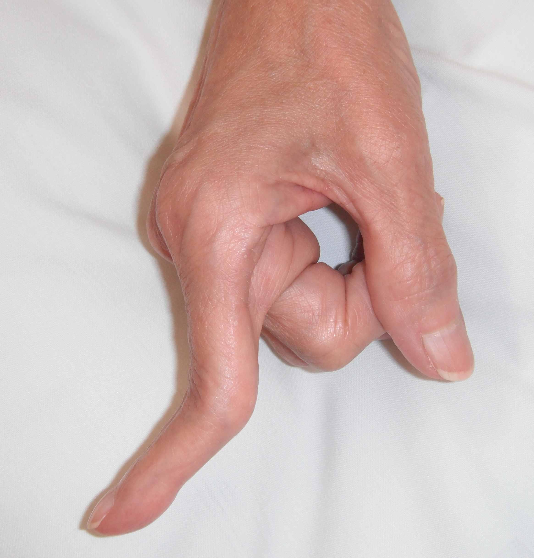 bone extension in fingers