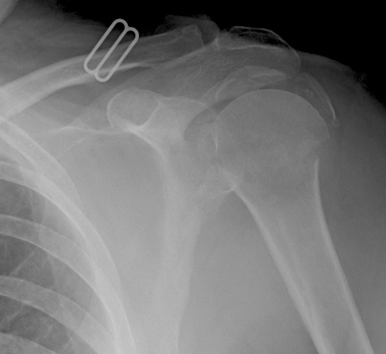 Proximal Humerus 4 Part Fracture