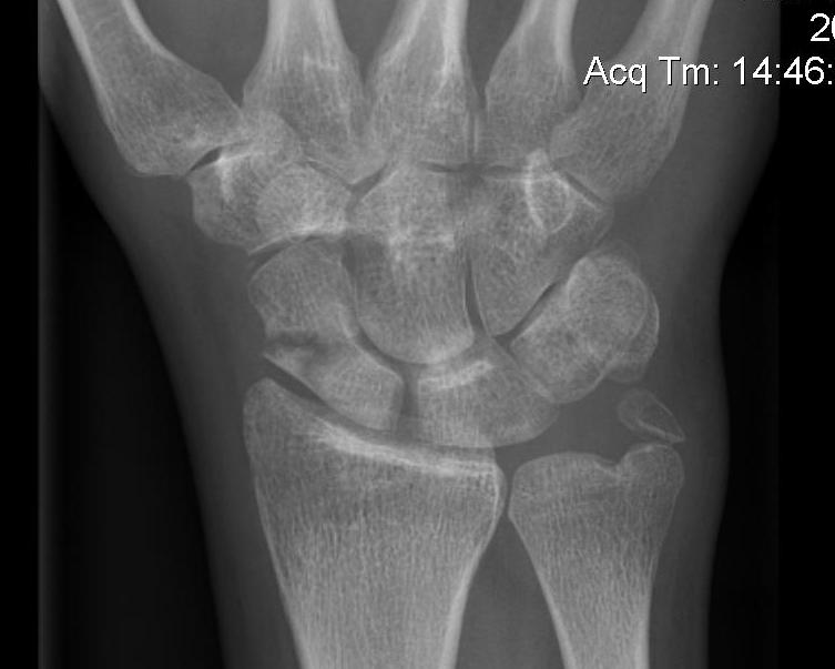 Scaphoid Fracture Complete