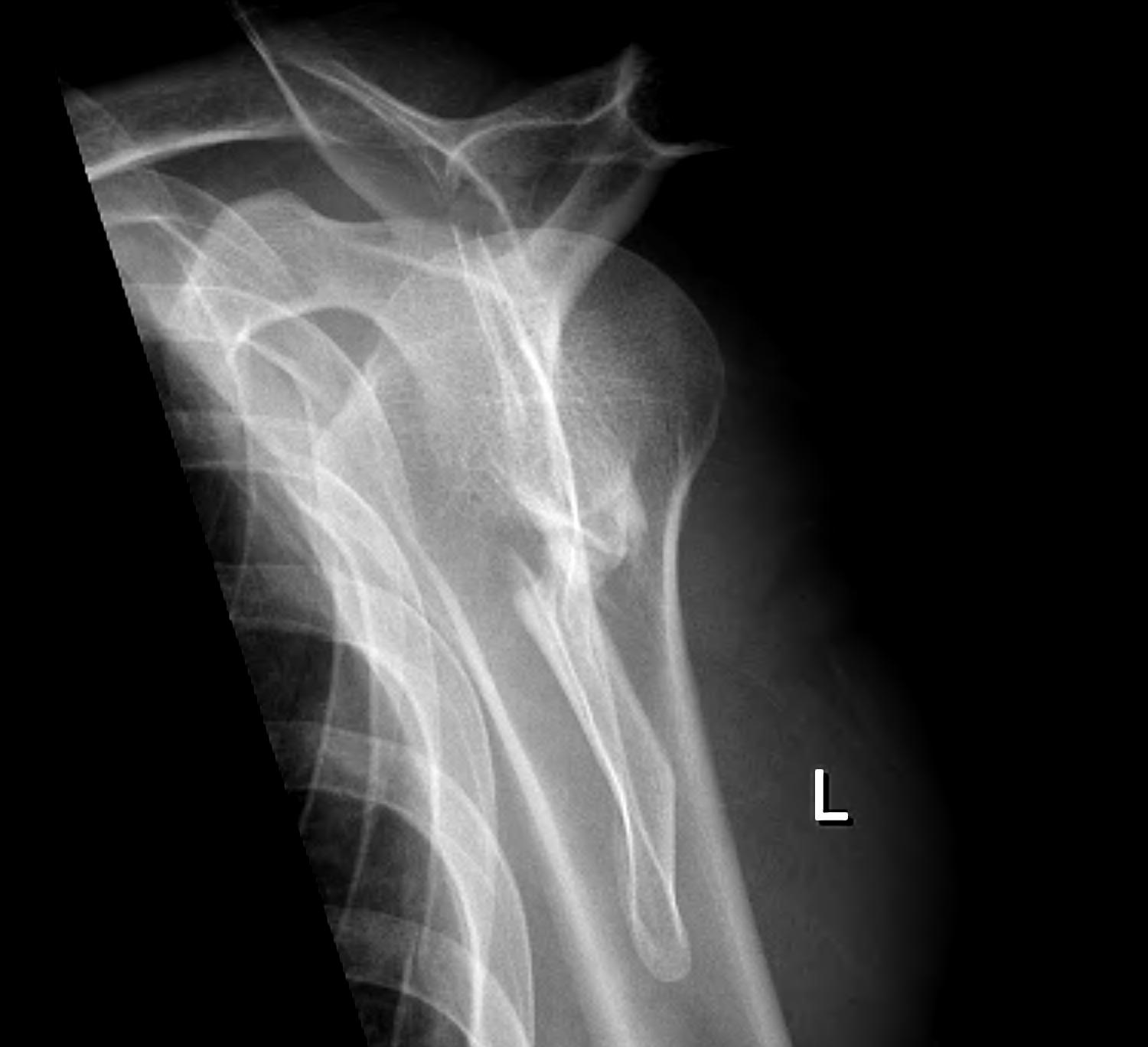 Scapula Body Fracture