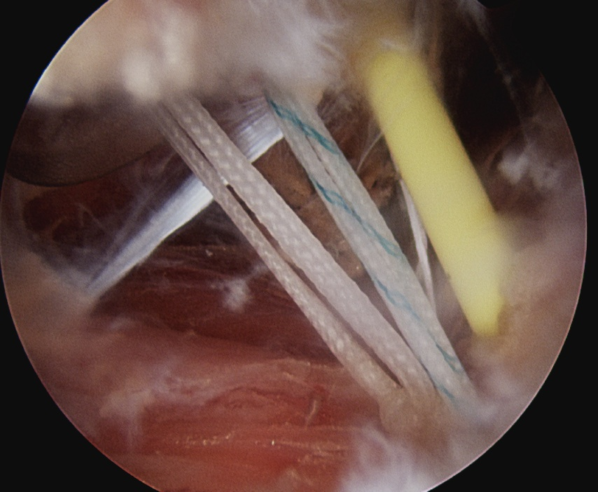 Remplissage Subacromial Space