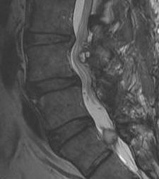 Spine Synovial Cysts MRI