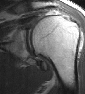 Supraspinatous Tear Retracted to Glenoid T1