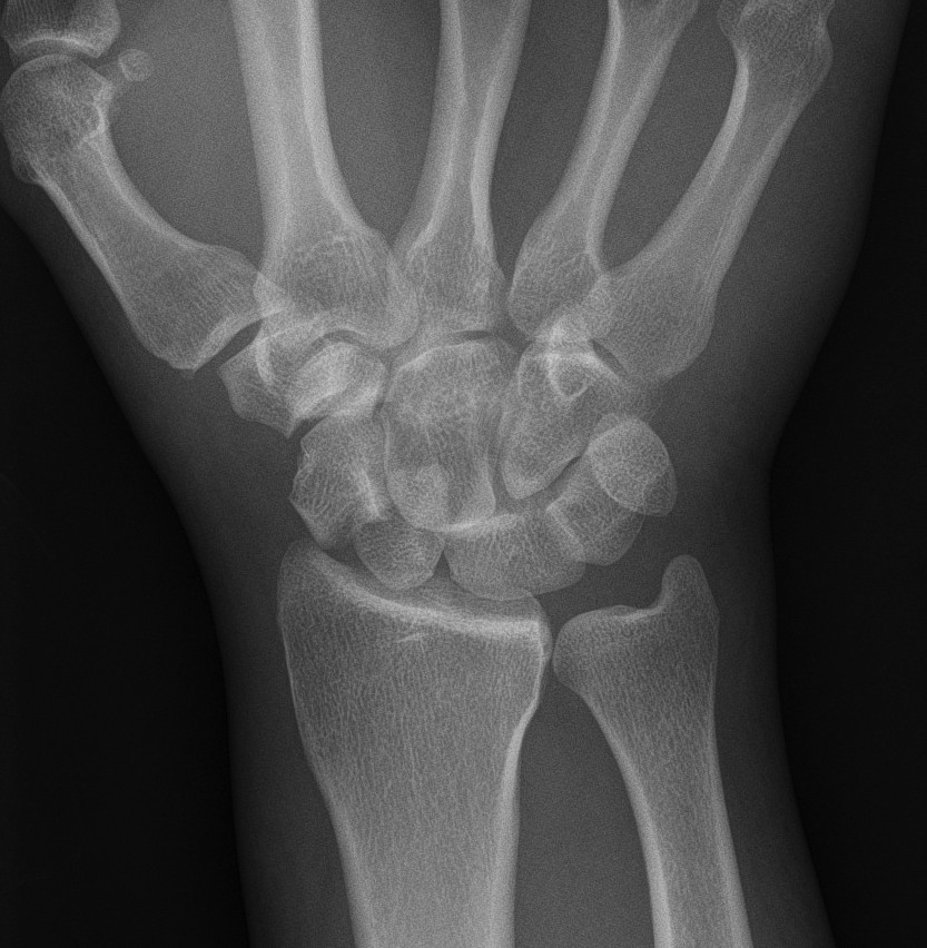 Transscaphoid Perilunate Dislocation