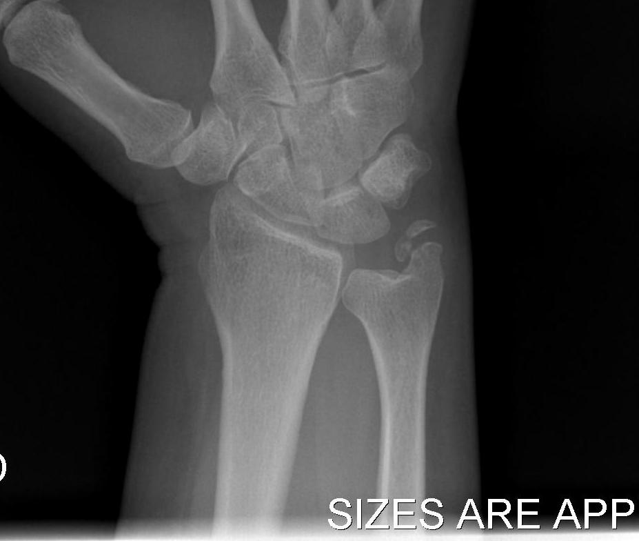Ulna Styloid Tip Fracture