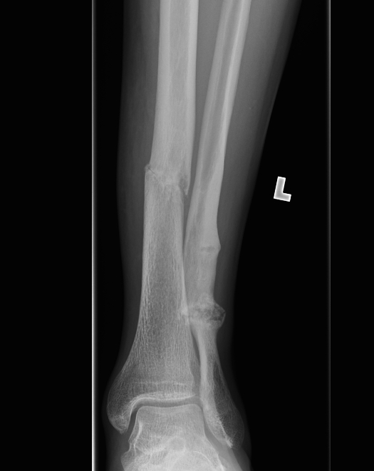 stress fracture sites